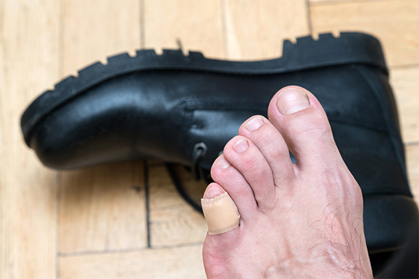 first-line treatment for foot vesicles or blisters