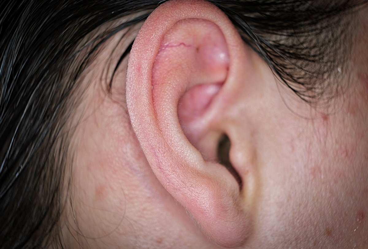manage ear pimples