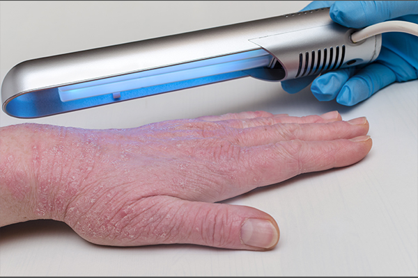 in-office treatments for nail psoriasis