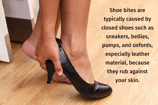 specific footwear types that can induce shoe bites