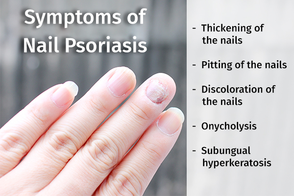 signs and symptoms of nail psoriasis