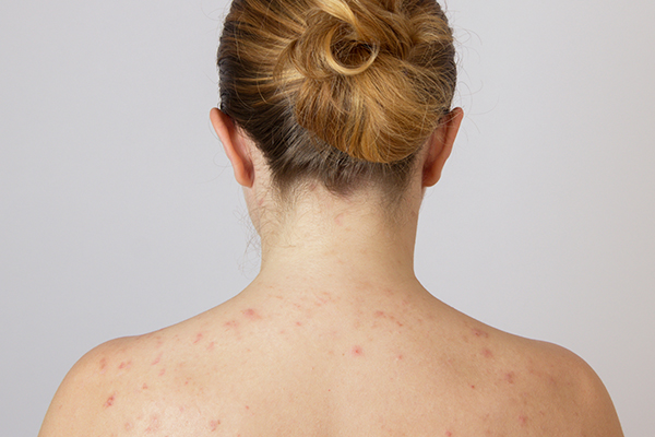 can shoulder acne fade on its own?