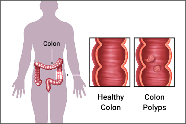 causes and risk factors that lead to colon polyps