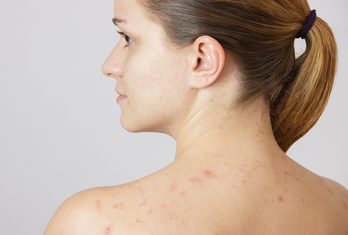 shoulder acne causes and treatment