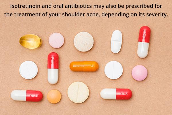 oral medications for treating shoulder acne